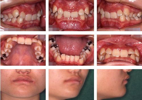 過蓋咬合の症例