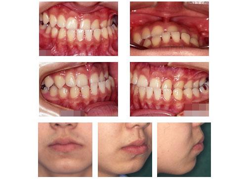 顎変形症の症例