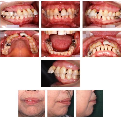 歯周病を伴う不正咬合