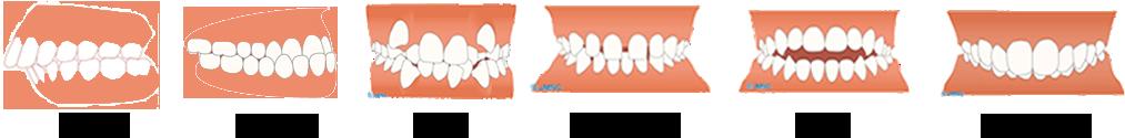 矯正歯科の種類
